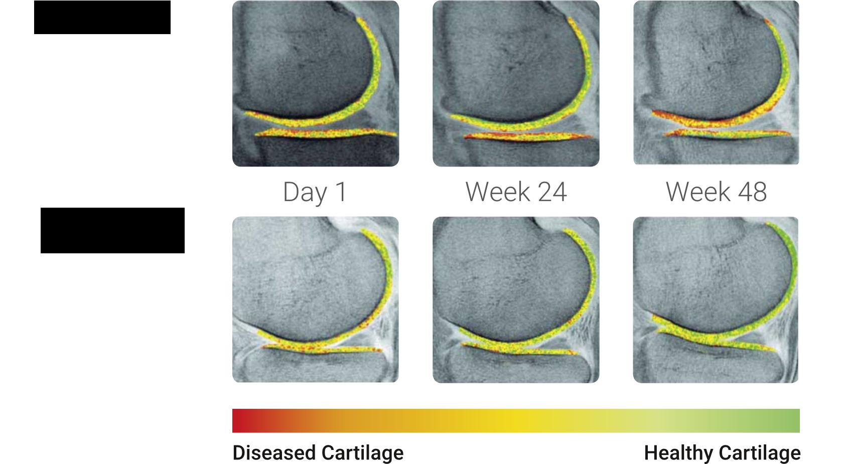 Kraakbeen-regeneratie weer eens duidelijk vastgelegd